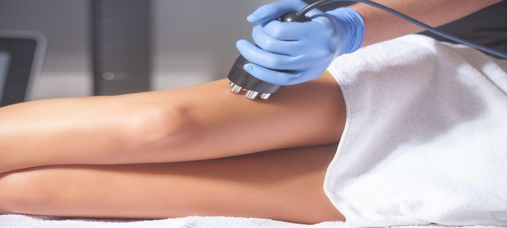 Velashape III Cellulite Treatment