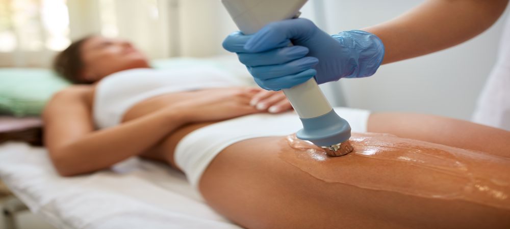 Velashape III Cellulite Treatment